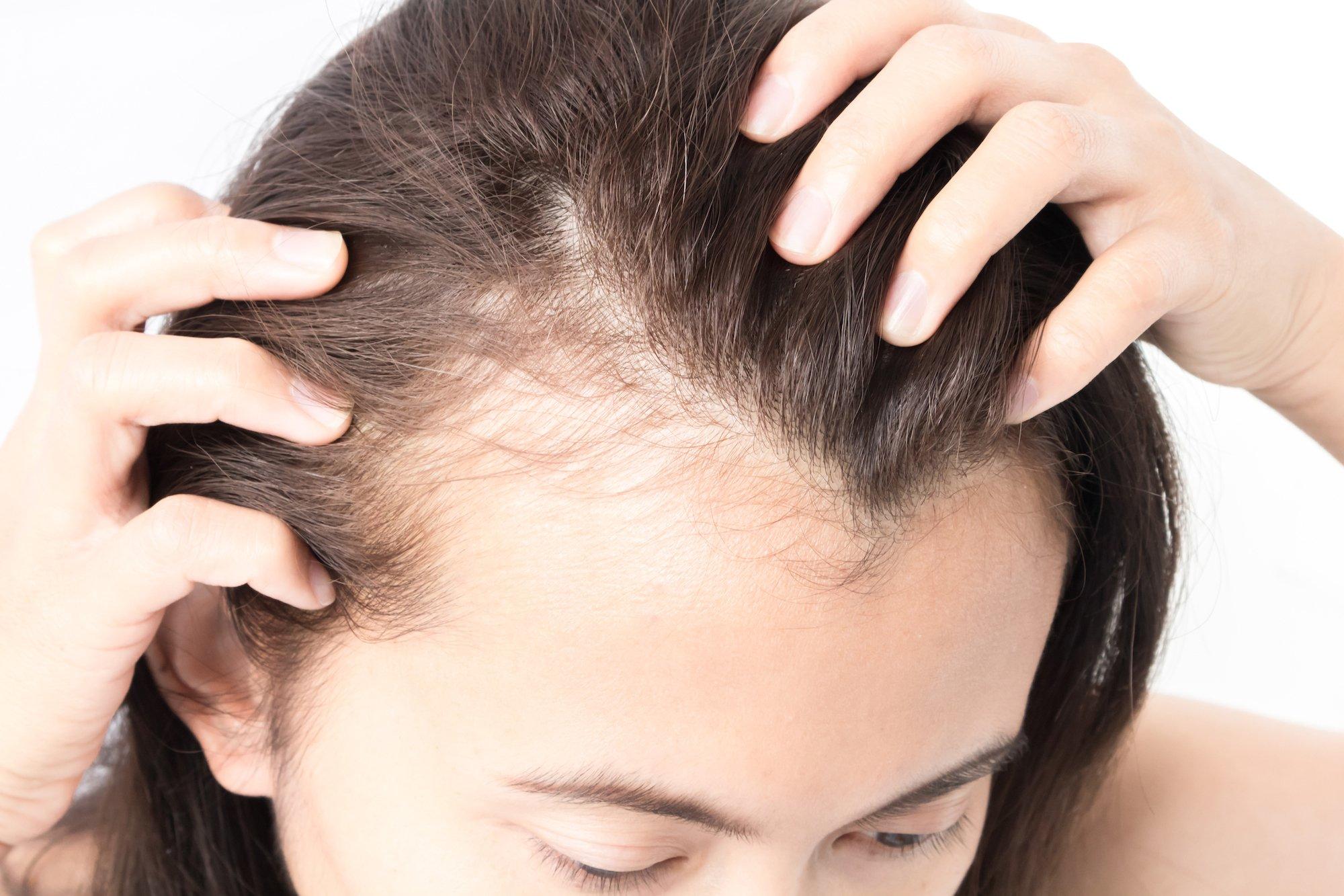 Garis rambut akibat kerontokan