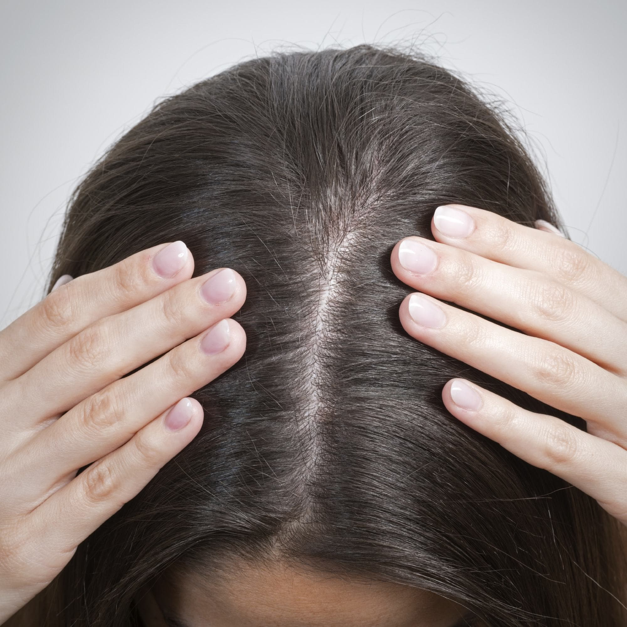 how many hairs do you lose a day: scalp check