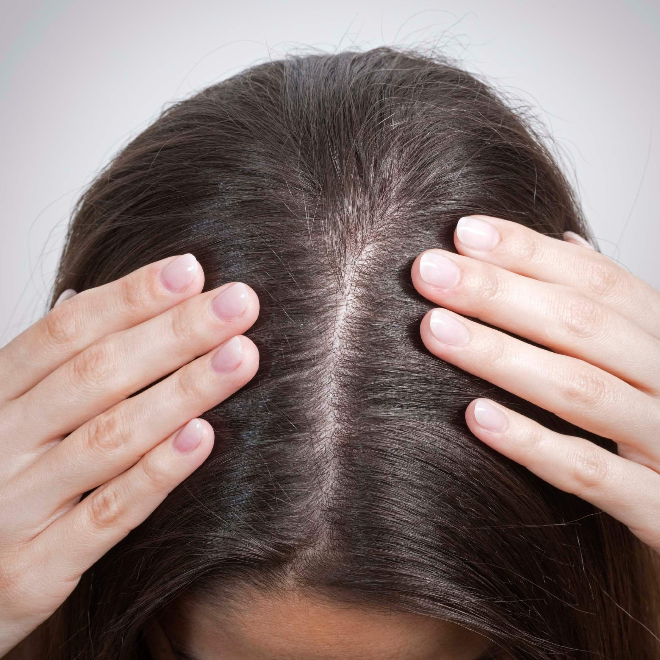 Types of hair loss: Close up of the top of a woman's head, parting her hair to show her scalp
