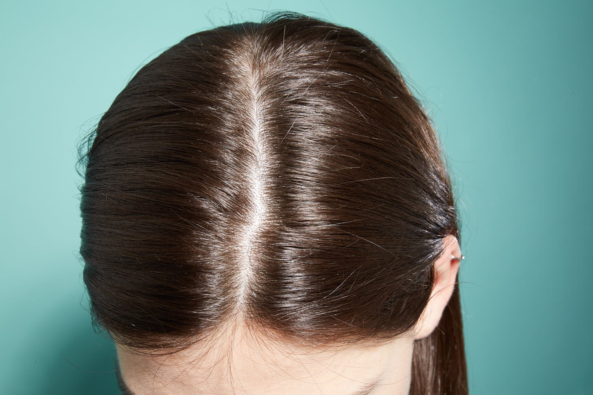 My hair is thinning: Close-up scalp shot of a brunette with straight hair